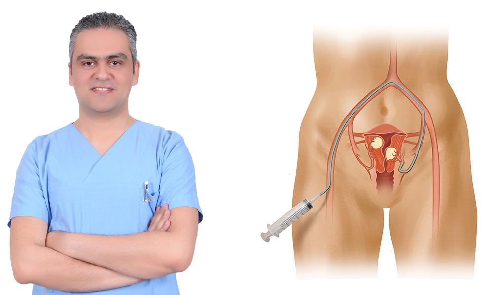 علاج أورام الرحم الليفية بالقسطرة