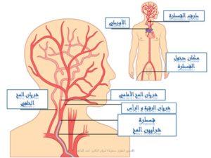 مسار قسطرة المخ