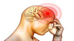 التمدد الشرياني في المخ