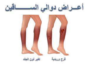 اعراض دوالي الساقين