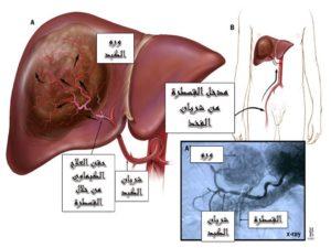 الحقن الكيماوي لأورام الكبد عن طريق القسطرة الشريانية