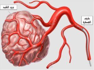 حقن أورام الكبد بالحبيبات الدوائية الذكية